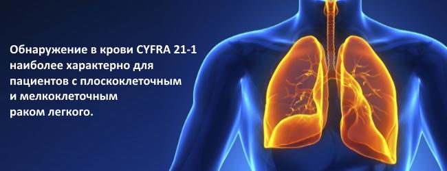 Onkomarker raka legkogo CYFRA 21-1