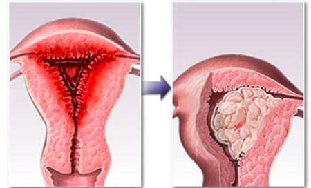 Опасность гиперплазии эндометрия