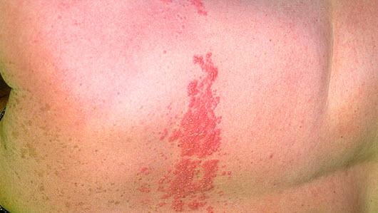 Симптомы и признаки герпеса