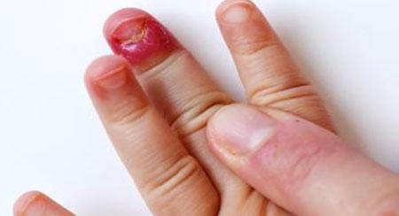 Панариций пальца на руке