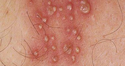 Половой герпес у женщин: симптомы и лечение герпеса на половых губах