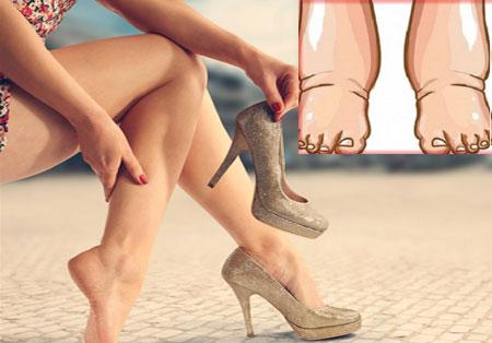 Причины отеков ног у женщин