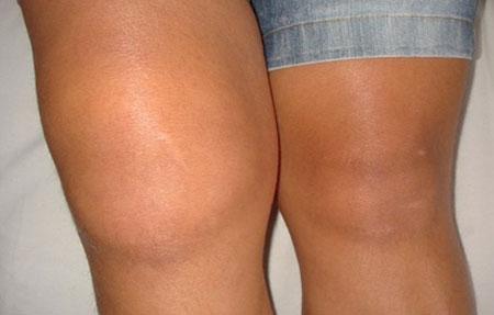 Причины возникновения артрита коленного сустава