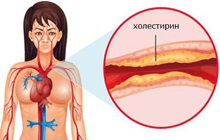 Причины возникновения холестириновых отложений
