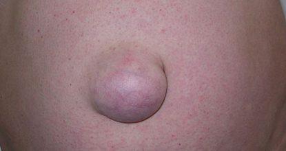 Пупочная грыжа у взрослых: симптомы и лечение, операция, осложнения, прогноз