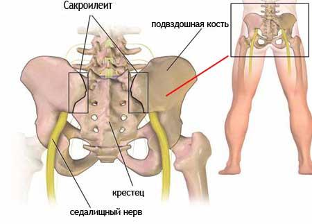Сакроилеит