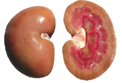 Симптомы и признаки амилоидоза почек