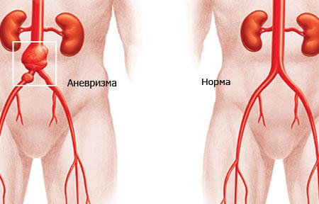 Симптомы-аневризма-аорты