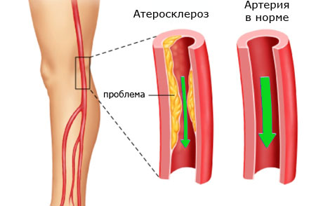 Симптомы атеросклероза сосудов нижних конечностей