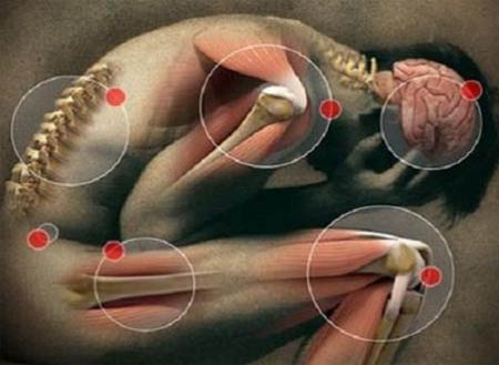 Симптомы рассеянного склероза