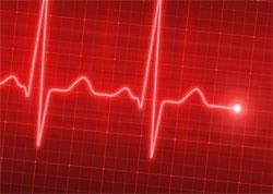 Синусовая аритмия сердца - что это такое