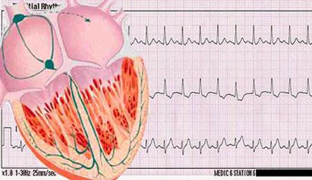 Синусовая тахикардия сердца