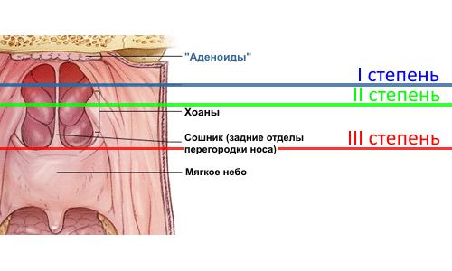 Stepeni-adenoidnogo-vospalenija