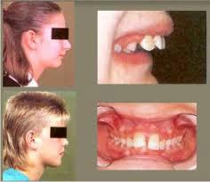 лицевой скелет при хроническом аденоидите