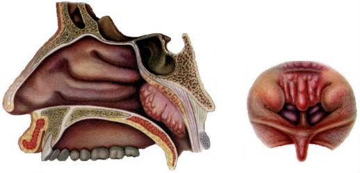 аденоидные разрастания