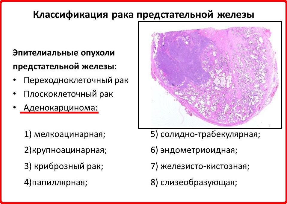 Аденокарцинома передміхурової залози: симптоми і лікування