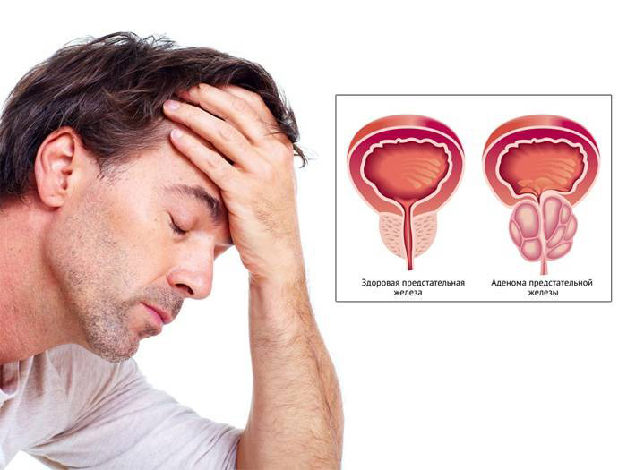 Визначення розмірів передміхурової залози: норма і відхилення