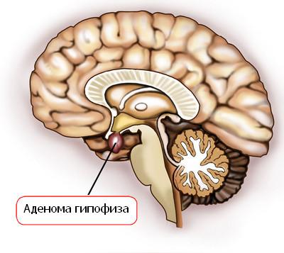 Аденома гипофиза и ее симптомы