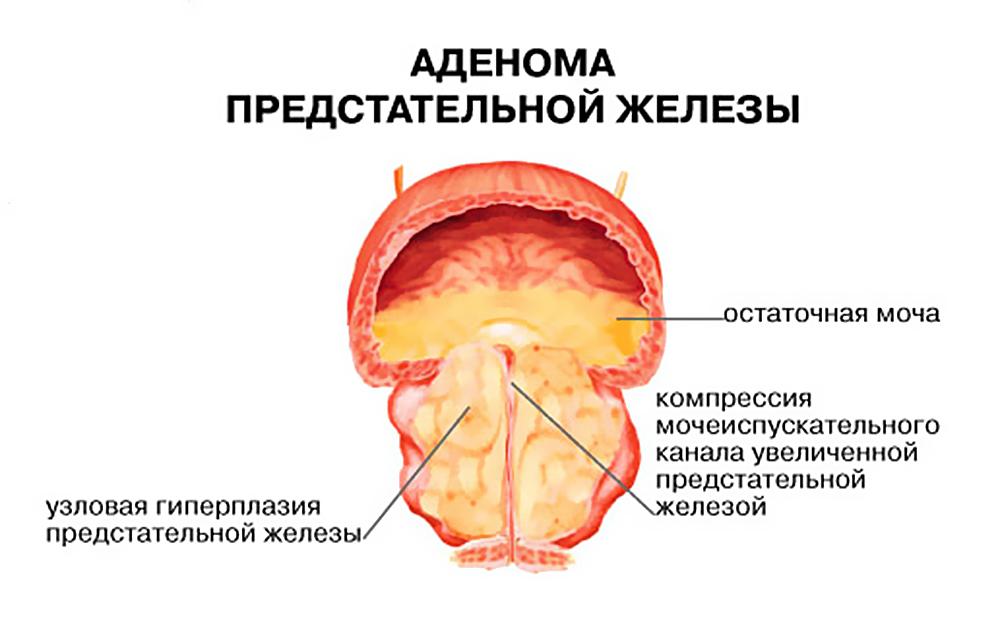 Основні відмінності раку простати від аденоми