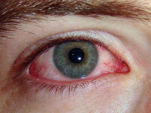 allergicheskii-konunktivit