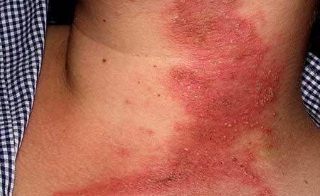 аллергический дерматит у взрослых, фото 1