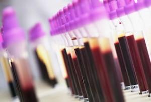 анализ крови аст