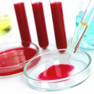 анализ крови на гормоны щитовидной