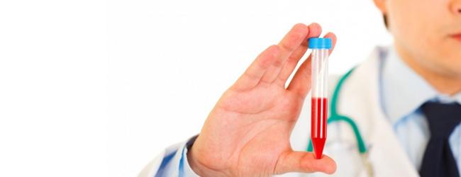 analiz-krovi-na-insulin
