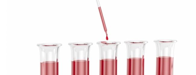analizy-pri-gelmintozax