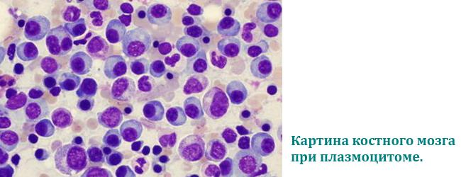 analizy-pri-mielomnoj-bolezni