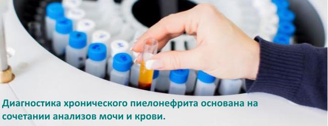analizy-pri-xronicheskom-pielonefrite