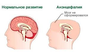 что такое анэнцефалия