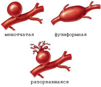 Cубарахноідальное крововилив