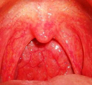 острая катаральная ангина (фото)