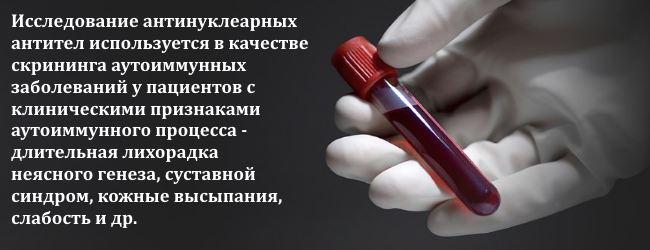 antinuklearnye-antitela
