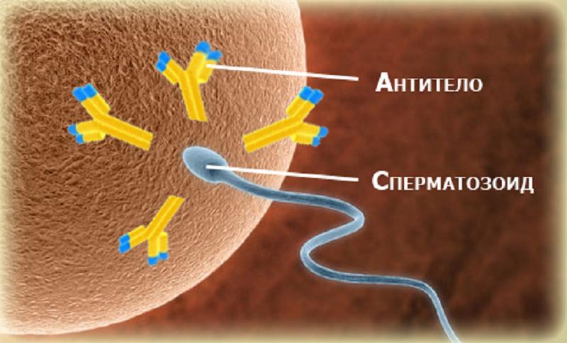 Антиспермальні антитіла (АСАТ): норма або відхилення