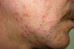 atopicheskij dermatit-8