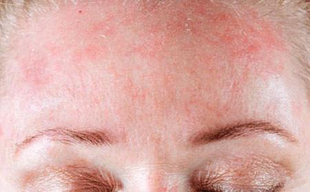 атопический дерматит на голове фото
