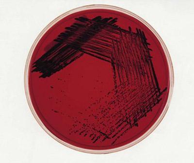 колонии Bacteroides niger