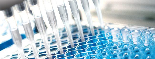 beta-2-mikroglobulin