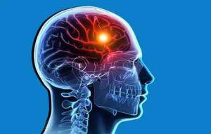 поражение мозга сифилисом