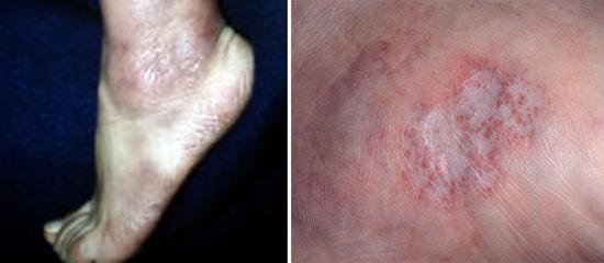 поражение кожи при болезни Лайма