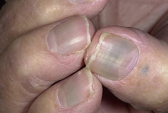заболевание ногтей, вызванное приемом Миноциклина