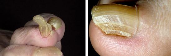 когтеобразные ногти
