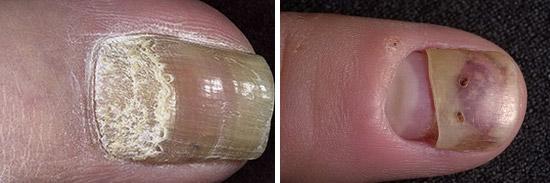 полное отделение ногтевых пластин