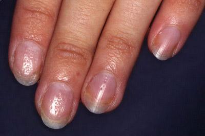 поражение ногтей при псориазе