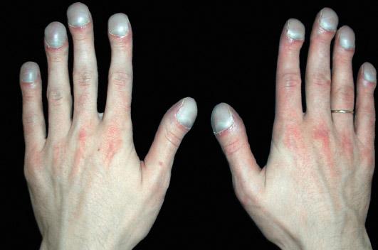 ногти «барабанные палочки»