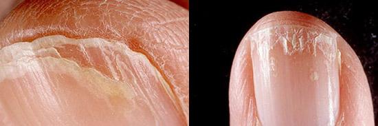 расщепление ногтей