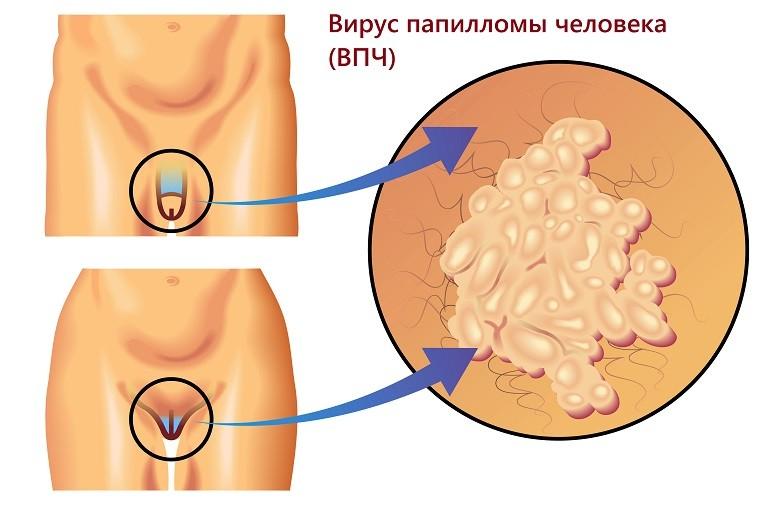 На статевих органах з'явилися бородавки: що робити