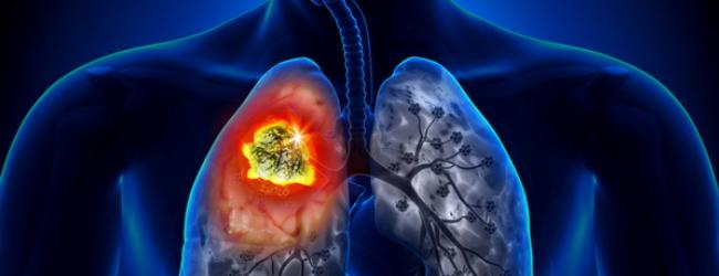 bronxogennaya-karcinoma